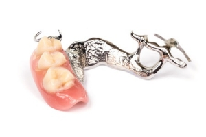 Chrome denture