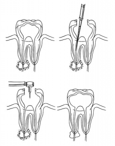 root canal services at dixon dental